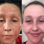 eczema image